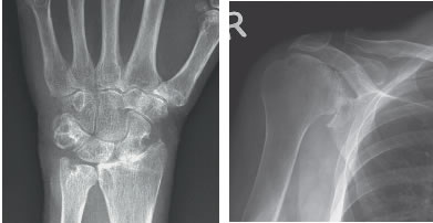 Various Other Forms of Arthritis