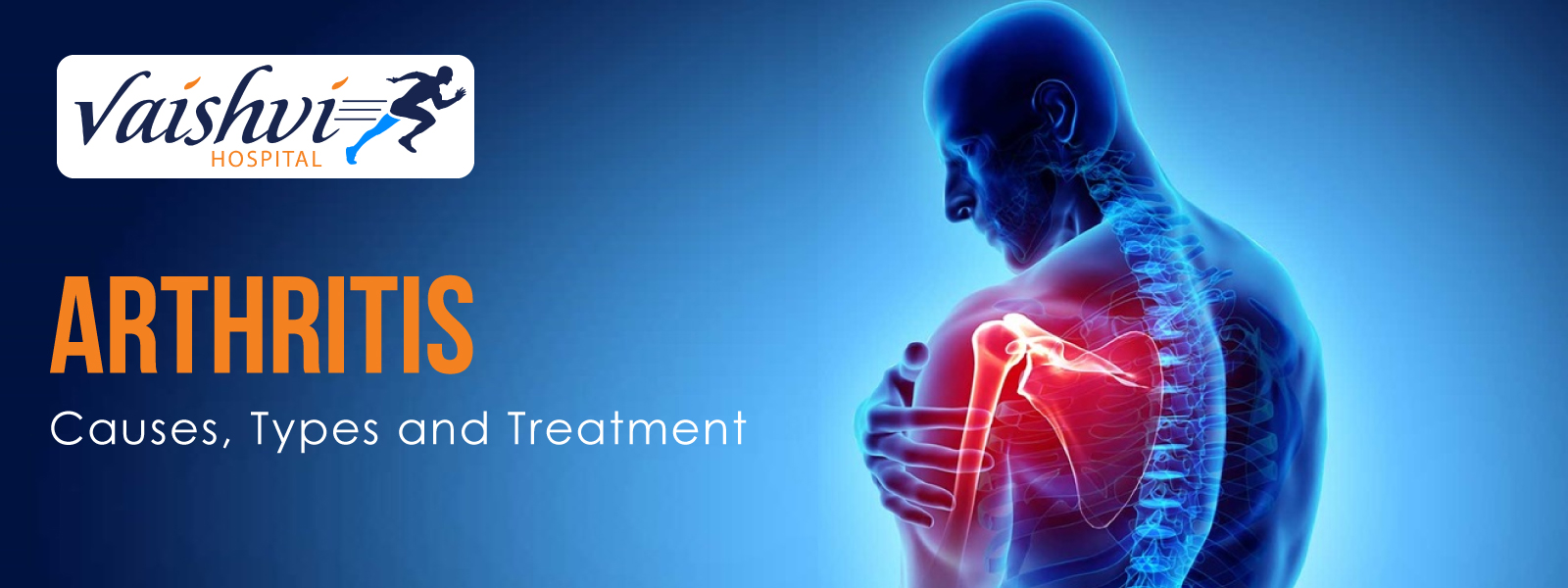 Arthritis – Causes, Types and Treatment
