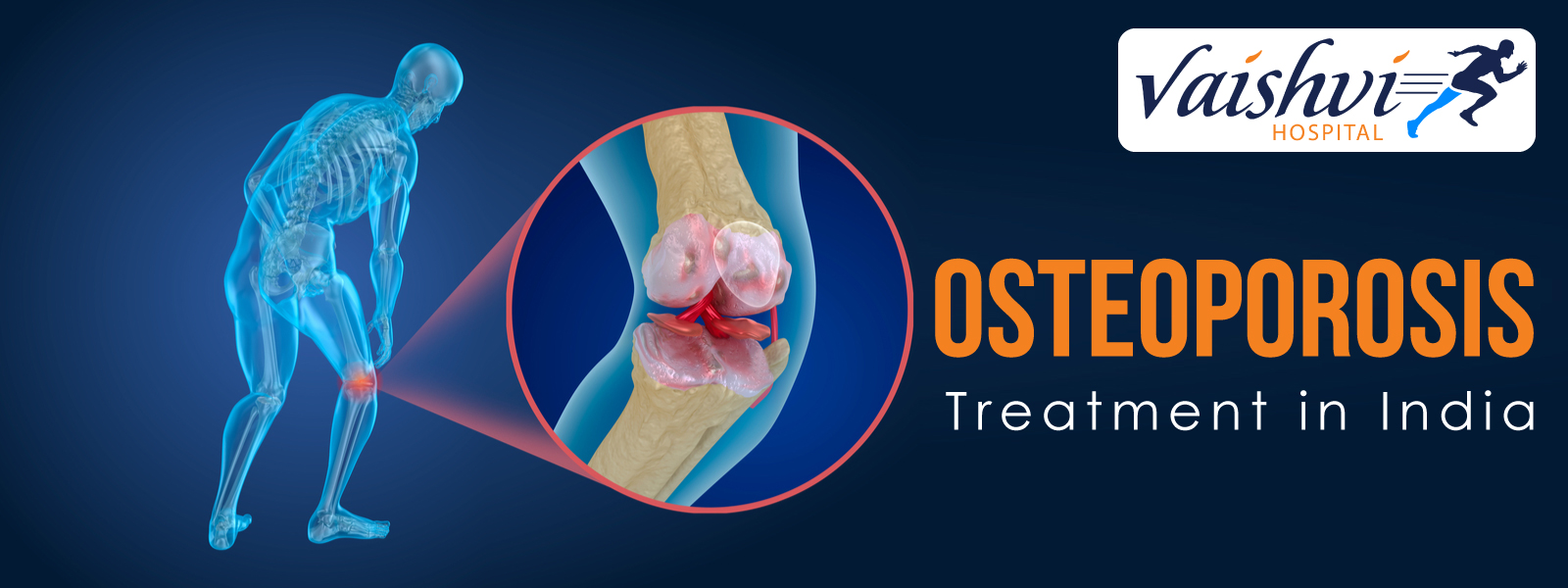 Osteoporosis Treatment in India