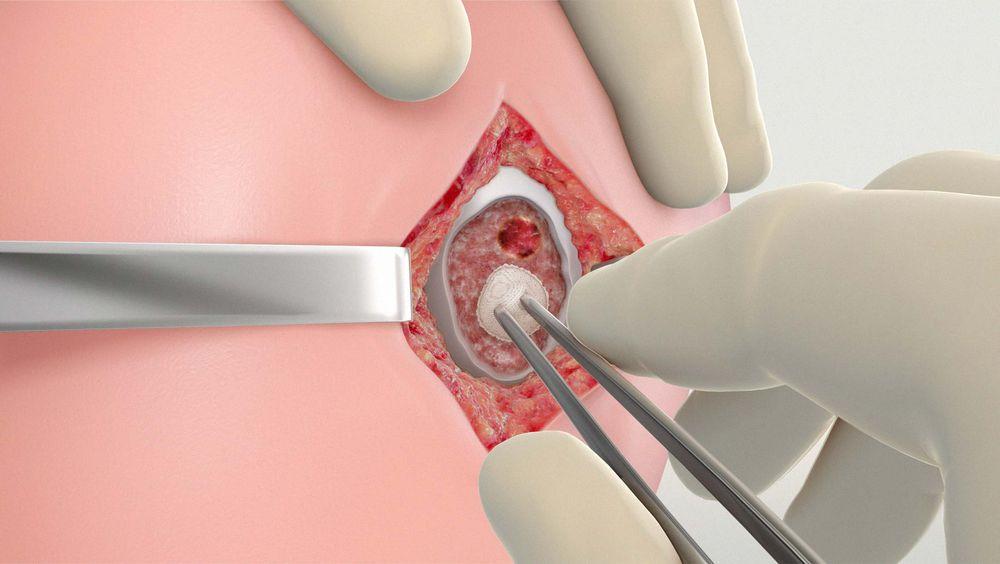 Cartilage Procedure