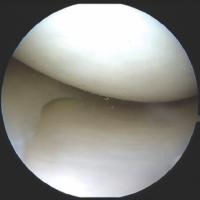 knee preservation surgery