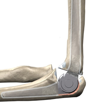 Elbow Replacement