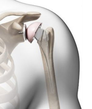 Shoulder Replacement
