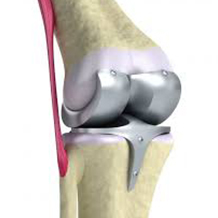 Revision of Joint Replacement